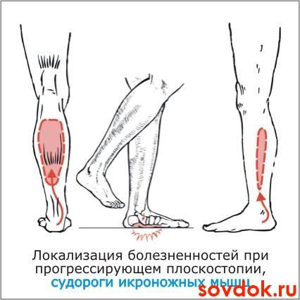 Из за чего судороги на ногах сводит и как лечить