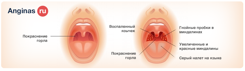 Ангина белый налет на миндалинах как лечить
