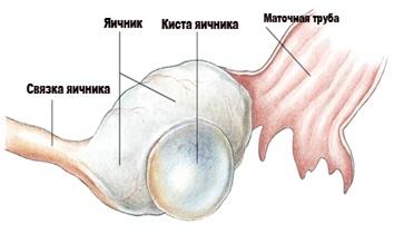 seks-apopleksii-yaichnika